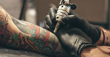 Common Tattoo Removal Questions & Answers